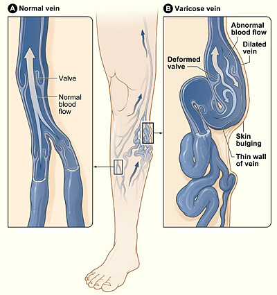 Homeopathic Treatments For Varicose Veins